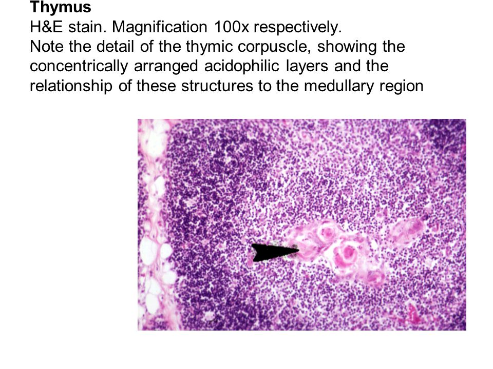 Thymus H&E stain. Magnification 100x respectively. Note the detail of the thymic corpuscle, showing the concentrically arranged acidophilic layers and