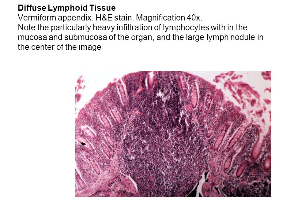 Diffuse Lymphoid Tissue Vermiform appendix. H&E stain. Magnification 40x. Note the particularly heavy infiltration of lymphocytes with in the mucosa a