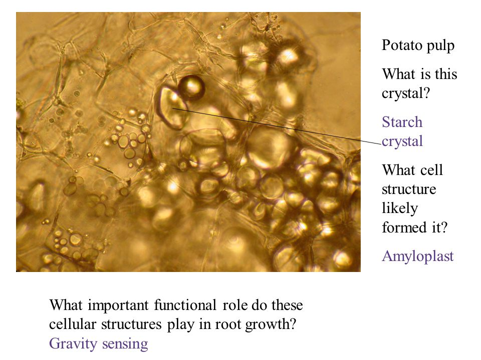 Potato pulp What is this crystal? Starch crystal What cell structure likely formed it? Amyloplast What important functional role do these cellular str
