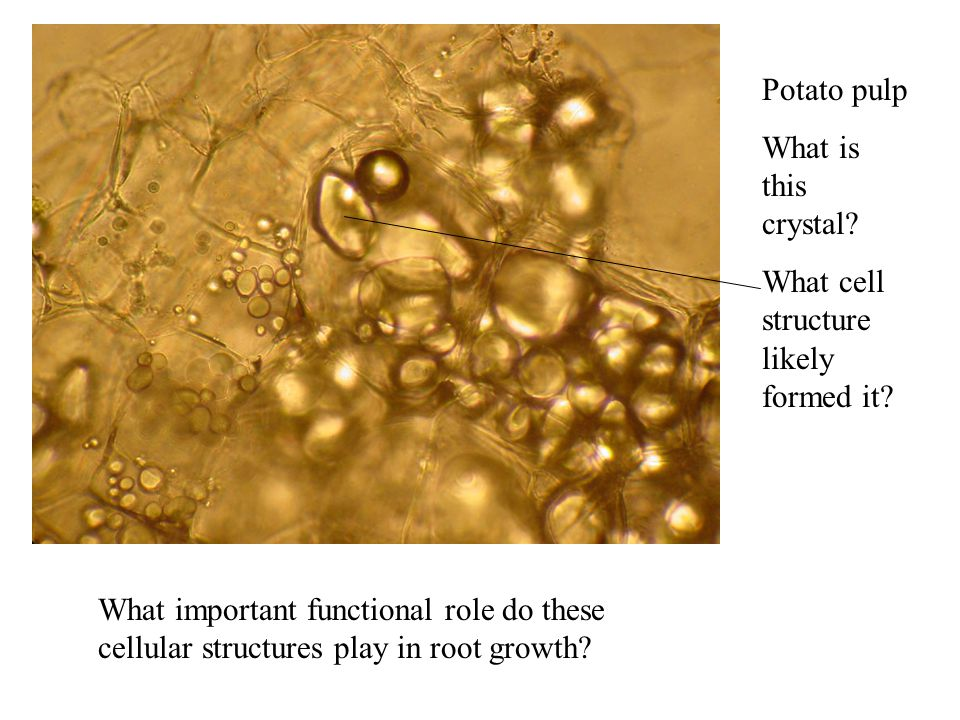 Potato pulp What is this crystal? What cell structure likely formed it? What important functional role do these cellular structures play in root growt