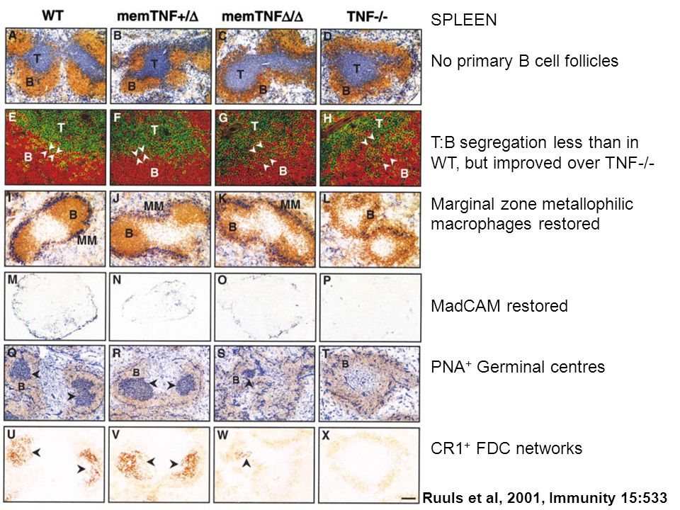SPLEEN No primary B cell follicles T:B segregation less than in WT, but improved over TNF-/- Marginal zone metallophilic macrophages restored MadCAM restored PNA + Germinal centres CR1 + FDC networks