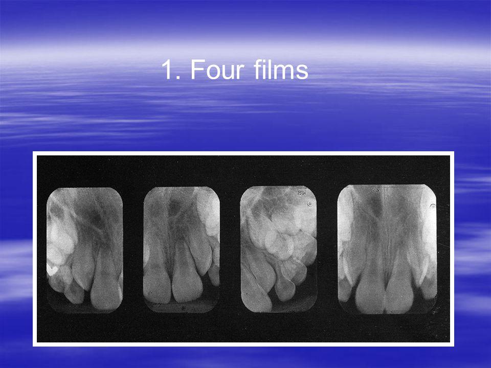 1. Four films