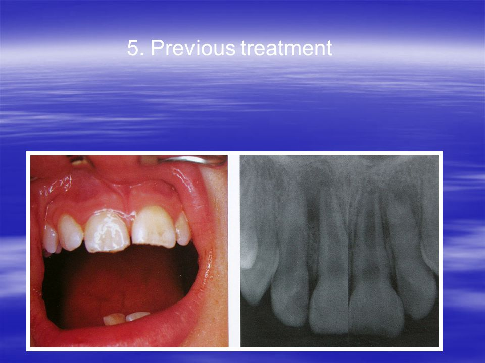 5. Previous treatment