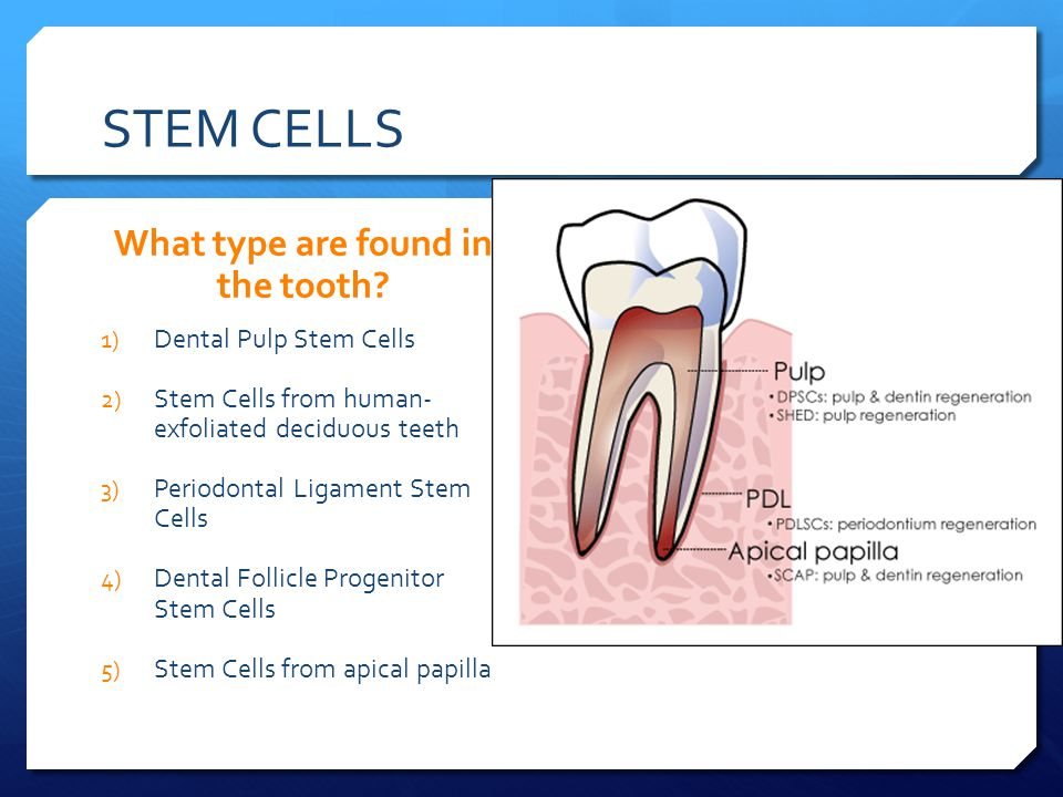 STEM CELLS What type are found in the tooth.