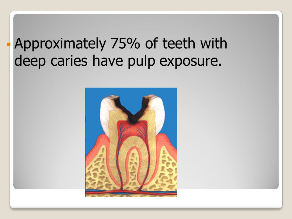  Approximately 75% of teeth with deep caries have pulp exposure.