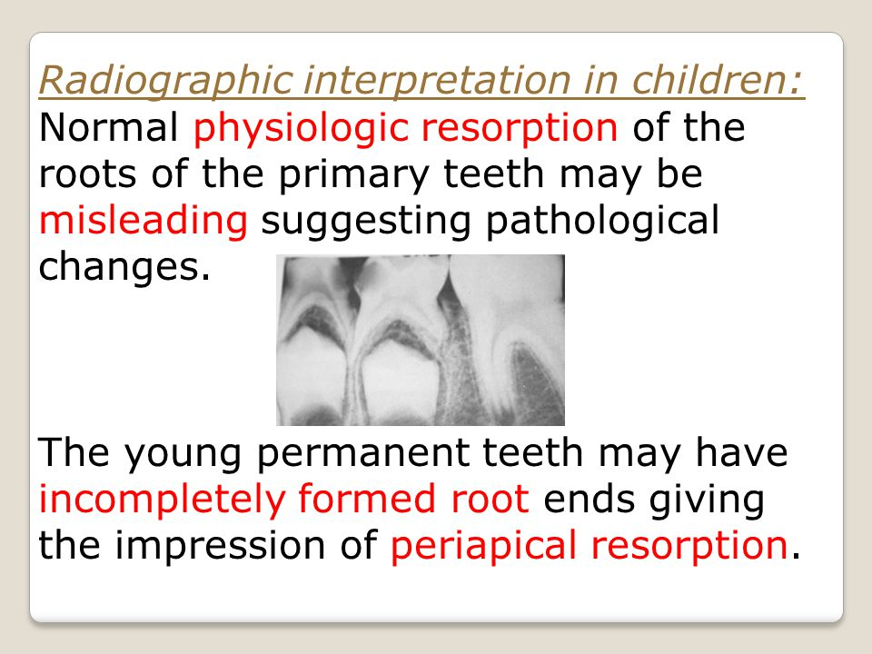 Radiographic interpretation in children: Normal physiologic resorption of the roots of the primary teeth may be misleading suggesting pathological changes.
