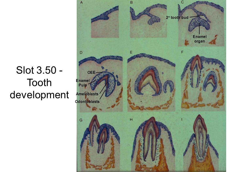 Slot 3.50 - Tooth development Enamel organ 2  tooth bud Enamel Pulp Ameloblasts Odontoblasts OEE