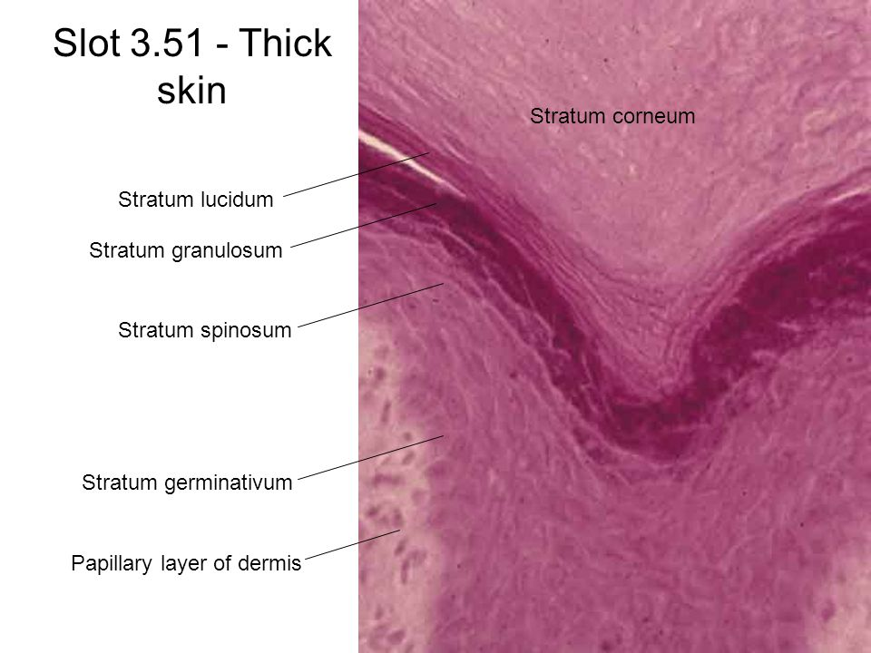 Slot 3.51 - Thick skin Stratum corneum Stratum lucidum Stratum granulosum Stratum spinosum Stratum germinativum Papillary layer of dermis