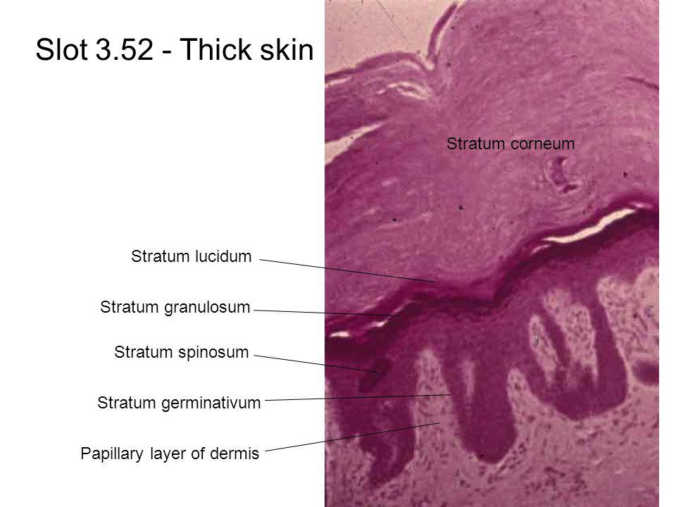 Slot 3.52 - Thick skin Stratum corneum Stratum lucidum Stratum granulosum Stratum spinosum Stratum germinativum Papillary layer of dermis