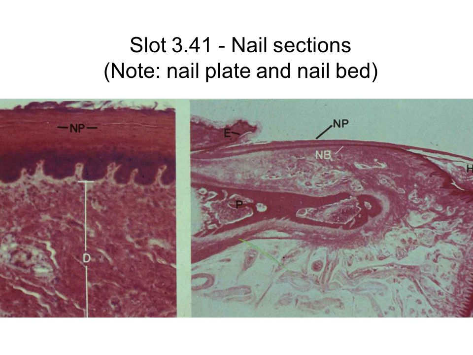 Slot 3.41 - Nail sections (Note: nail plate and nail bed)