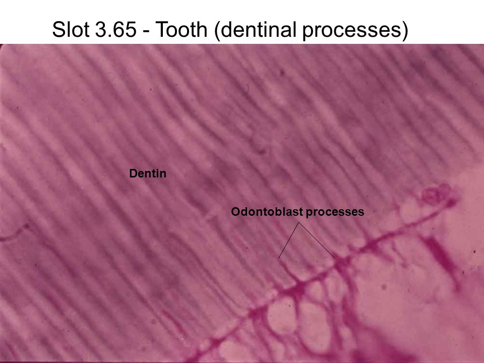 Slot 3.65 - Tooth (dentinal processes) Dentin Odontoblast processes
