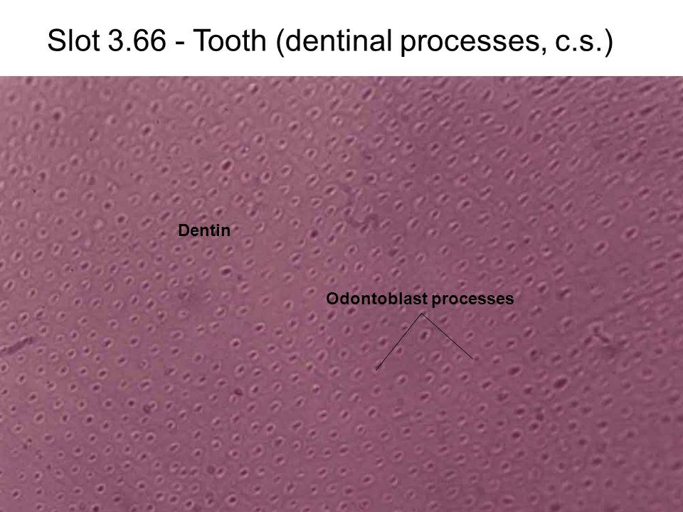 Slot 3.66 - Tooth (dentinal processes, c.s.) Odontoblast processes Dentin