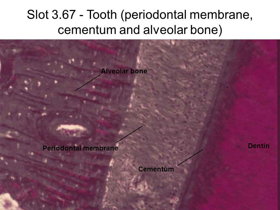 Slot 3.67 - Tooth (periodontal membrane, cementum and alveolar bone) Dentin Cementum Periodontal membrane Alveolar bone