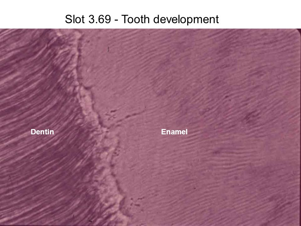 Slot 3.69 - Tooth development DentinEnamel