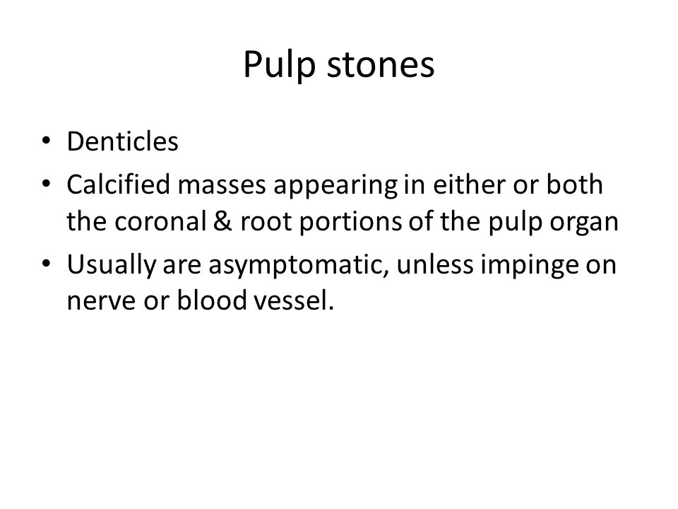Pulp stones Denticles Calcified masses appearing in either or both the coronal & root portions of the pulp organ Usually are asymptomatic, unless impi
