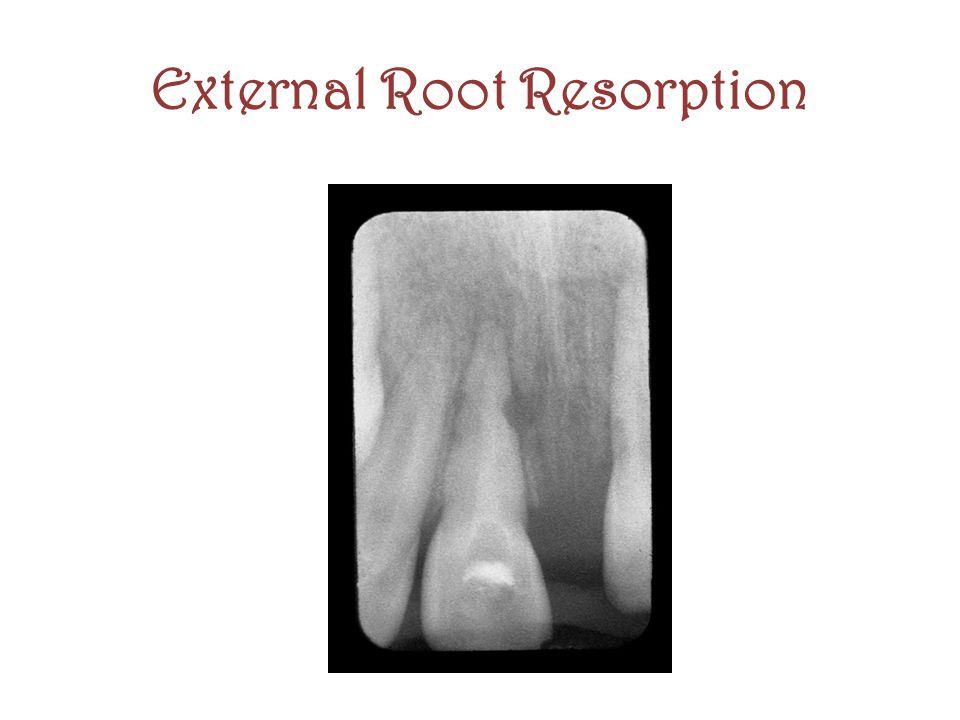 External Root Resorption