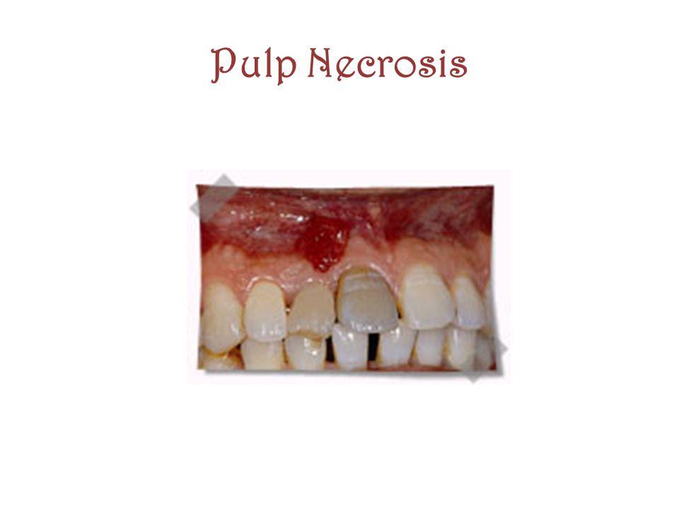 Pulp Necrosis