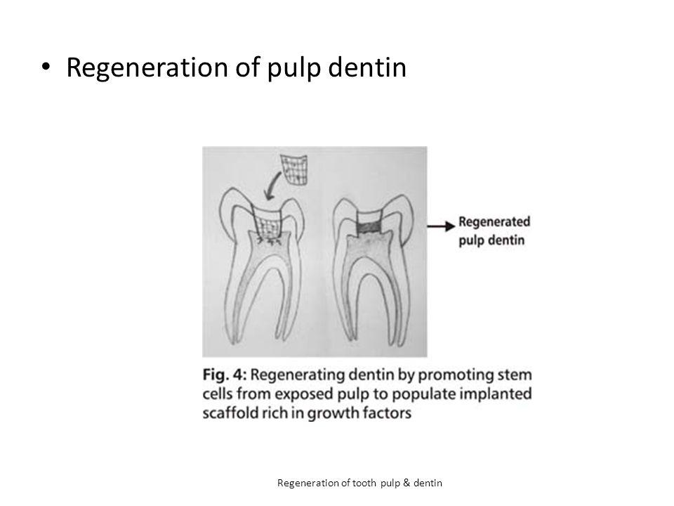 Regeneration of pulp dentin Regeneration of tooth pulp & dentin