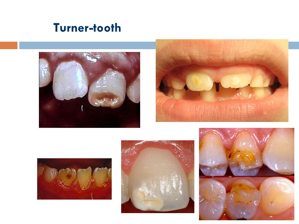 Turner-tooth