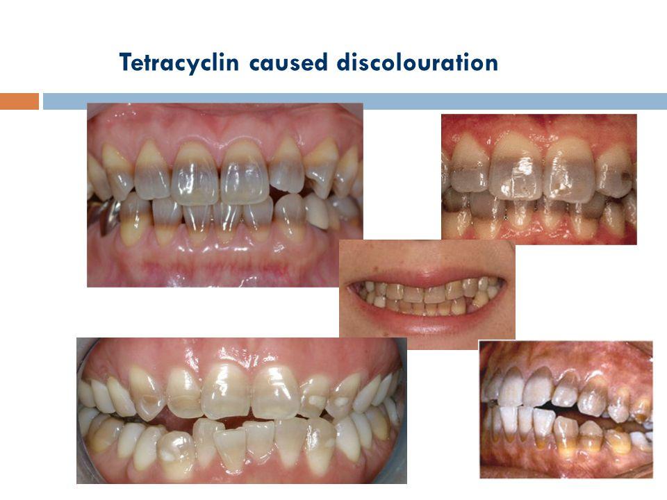Tetracyclin caused discolouration