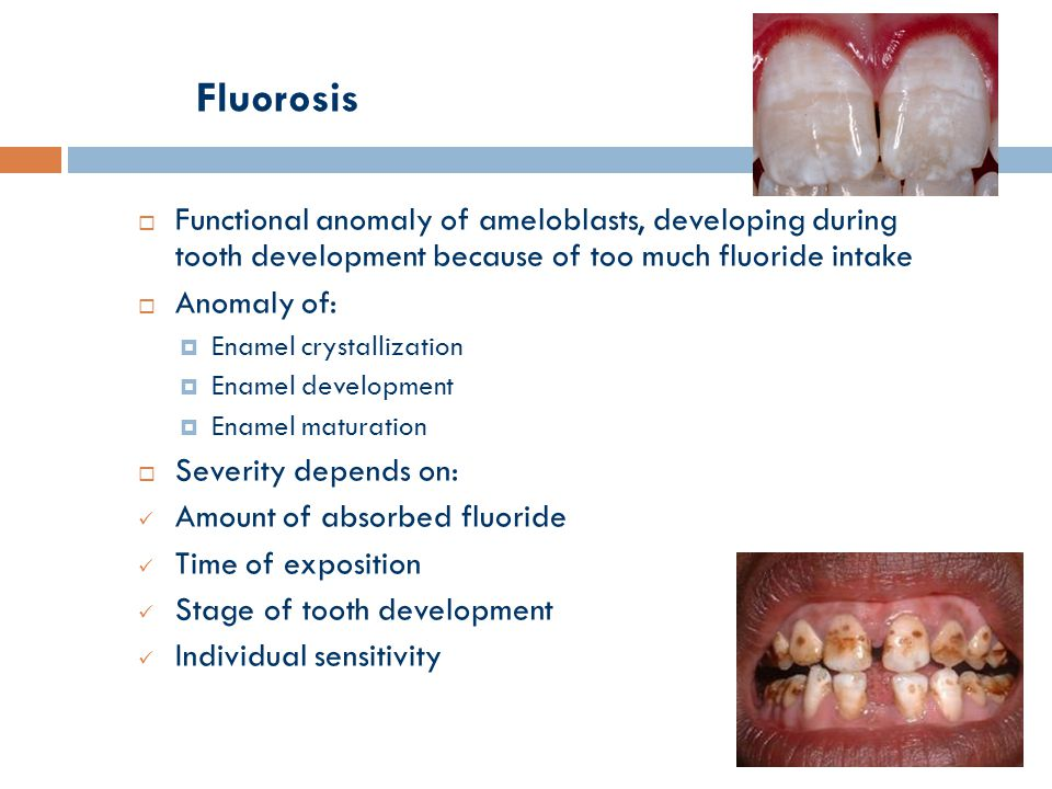 Fluorosis  Functional anomaly of ameloblasts, developing during tooth development because of too much fluoride intake  Anomaly of:  Enamel crystallization  Enamel development  Enamel maturation  Severity depends on: Amount of absorbed fluoride Time of exposition Stage of tooth development Individual sensitivity