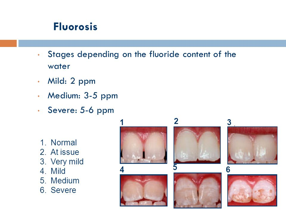 Fluorosis Stages depending on the fluoride content of the water Mild: 2 ppm Medium: 3-5 ppm Severe: 5-6 ppm 1 2 3 4 5 6 1.Normal 2.At issue 3.Very mil