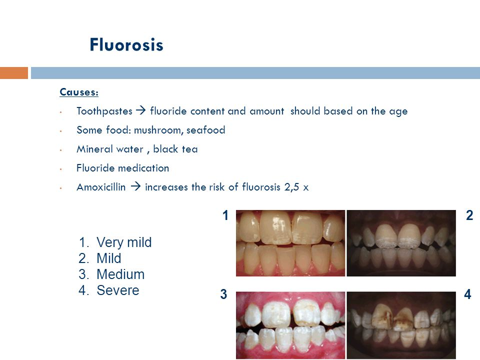 Fluorosis Causes: Toothpastes  fluoride content and amount should based on the age Some food: mushroom, seafood Mineral water, black tea Fluoride medication Amoxicillin  increases the risk of fluorosis 2,5 x 12 34 1.Very mild 2.Mild 3.Medium 4.Severe