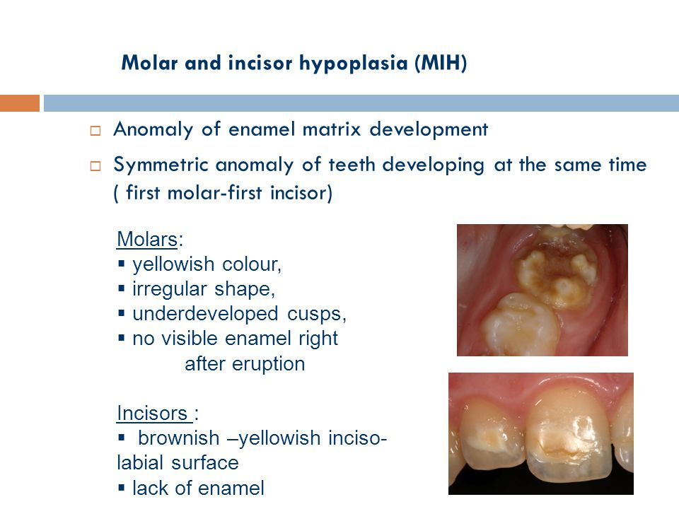Molar and incisor hypoplasia (MIH)  Anomaly of enamel matrix development  Symmetric anomaly of teeth developing at the same time ( first molar-first incisor) Molars:  yellowish colour,  irregular shape,  underdeveloped cusps,  no visible enamel right after eruption Incisors :  brownish –yellowish inciso- labial surface  lack of enamel