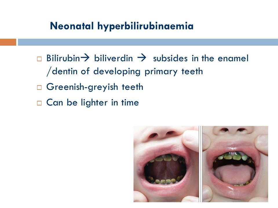 Neonatal hyperbilirubinaemia  Bilirubin  biliverdin  subsides in the enamel /dentin of developing primary teeth  Greenish-greyish teeth  Can be lighter in time