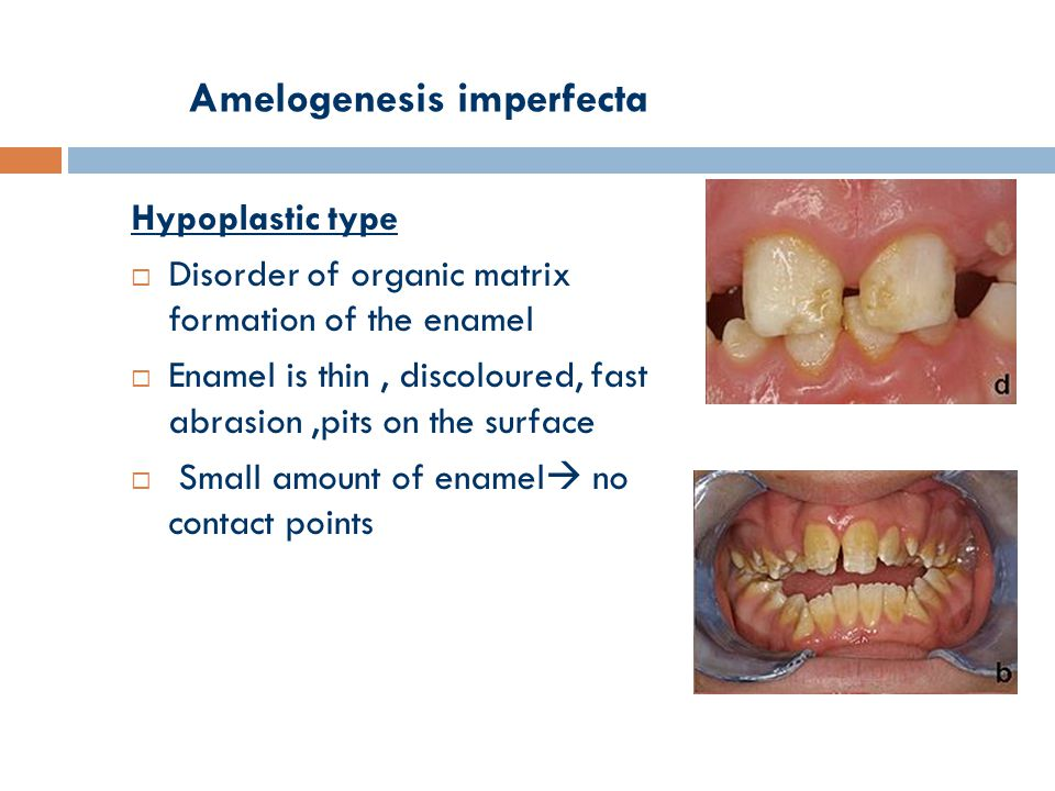 Amelogenesis imperfecta Hypoplastic type  Disorder of organic matrix formation of the enamel  Enamel is thin, discoloured, fast abrasion,pits on the surface  Small amount of enamel  no contact points