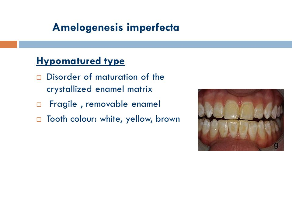 Amelogenesis imperfecta Hypomatured type  Disorder of maturation of the crystallized enamel matrix  Fragile, removable enamel  Tooth colour: white, yellow, brown