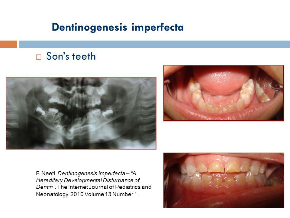 Dentinogenesis imperfecta  Son's teeth B Neeti.