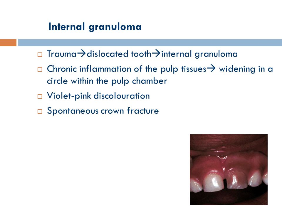 Internal granuloma  Trauma  dislocated tooth  internal granuloma  Chronic inflammation of the pulp tissues  widening in a circle within the pulp