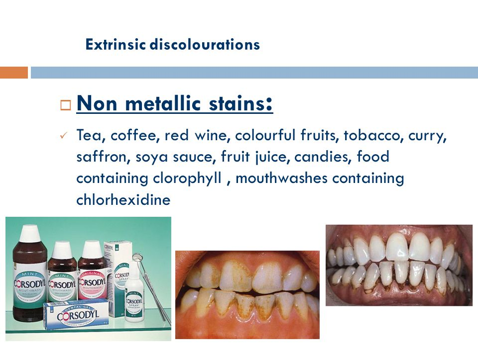 Extrinsic discolourations  Non metallic stains : Tea, coffee, red wine, colourful fruits, tobacco, curry, saffron, soya sauce, fruit juice, candies, food containing clorophyll, mouthwashes containing chlorhexidine