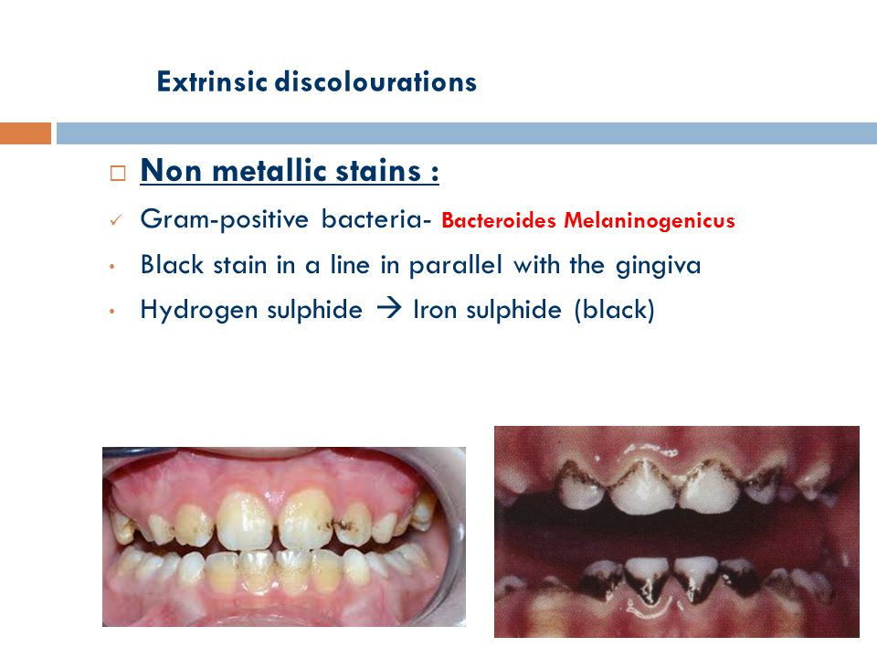 Extrinsic discolourations  Non metallic stains : Gram-positive bacteria- Bacteroides Melaninogenicus Black stain in a line in parallel with the gingiva Hydrogen sulphide  Iron sulphide (black)