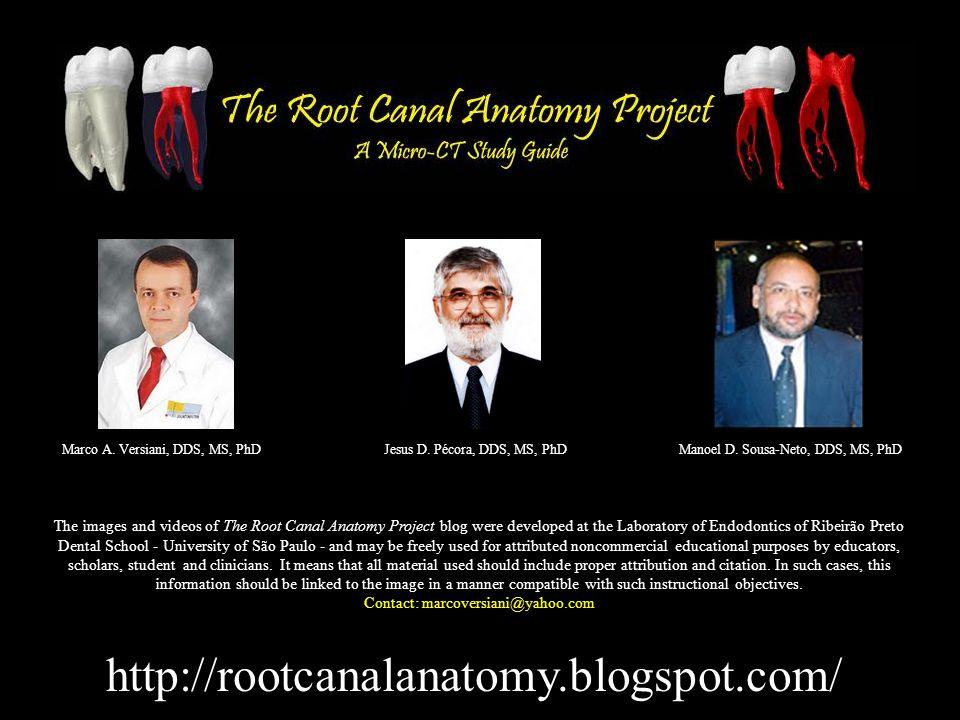 http://rootcanalanatomy.blogspot.com/ Marco A. Versiani, DDS, MS, PhDJesus D.