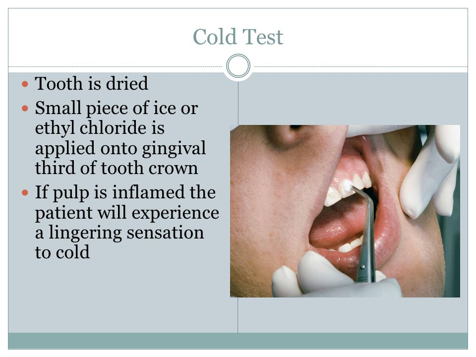 Cold Test Tooth is dried Small piece of ice or ethyl chloride is applied onto gingival third of tooth crown If pulp is inflamed the patient will experience a lingering sensation to cold