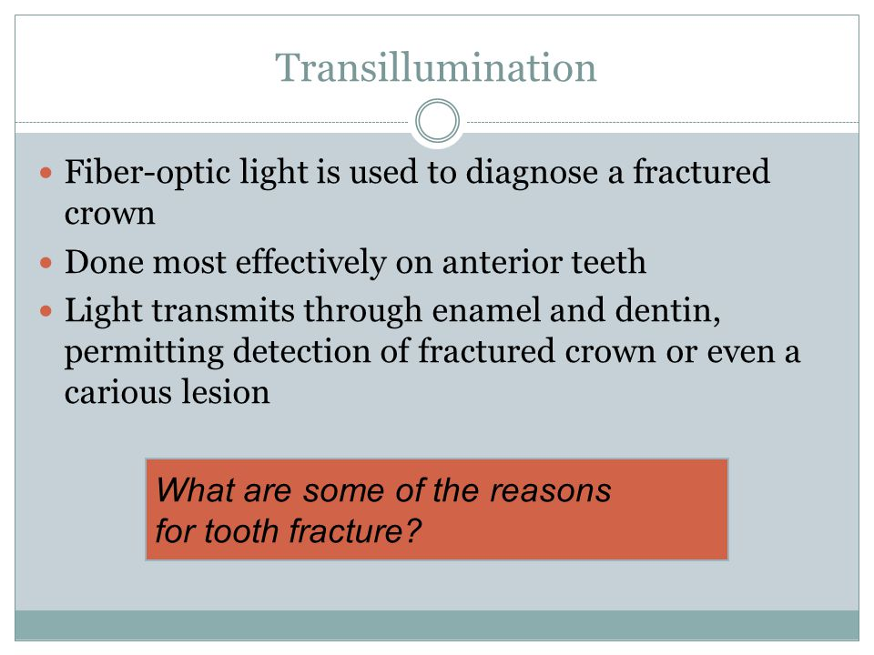 Transillumination Fiber-optic light is used to diagnose a fractured crown Done most effectively on anterior teeth Light transmits through enamel and dentin, permitting detection of fractured crown or even a carious lesion What are some of the reasons for tooth fracture
