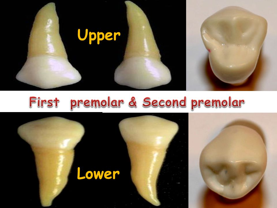 Molars First second Upper Lower Wisdom tooth =Third permanent molar