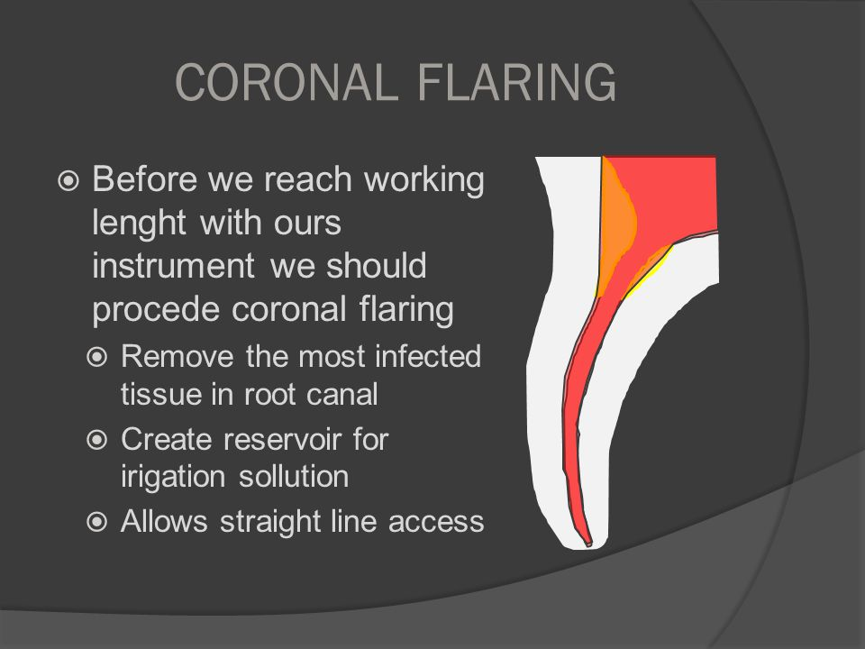 CORONAL FLARING  Before we reach working lenght with ours instrument we should procede coronal flaring  Remove the most infected tissue in root cana