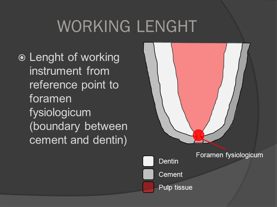 WORKING LENGHT  Lenght of working instrument from reference point to foramen fysiologicum (boundary between cement and dentin) Dentin Cement Pulp tis