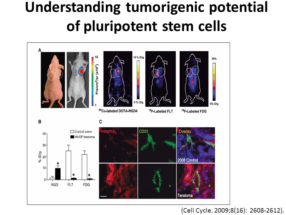 (Cell Cycle. 2009;8(16): 2608-2612). Understanding tumorigenic potential of pluripotent stem cells
