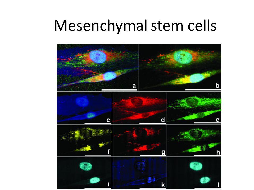 Mesenchymal stem cells J Anat. Feb 2004; 204(2): 133–139.