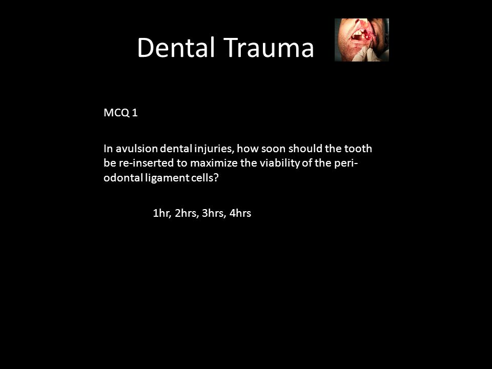 Dental Trauma MCQ 1 In avulsion dental injuries, how soon should the tooth be re-inserted to maximize the viability of the peri- odontal ligament cells.