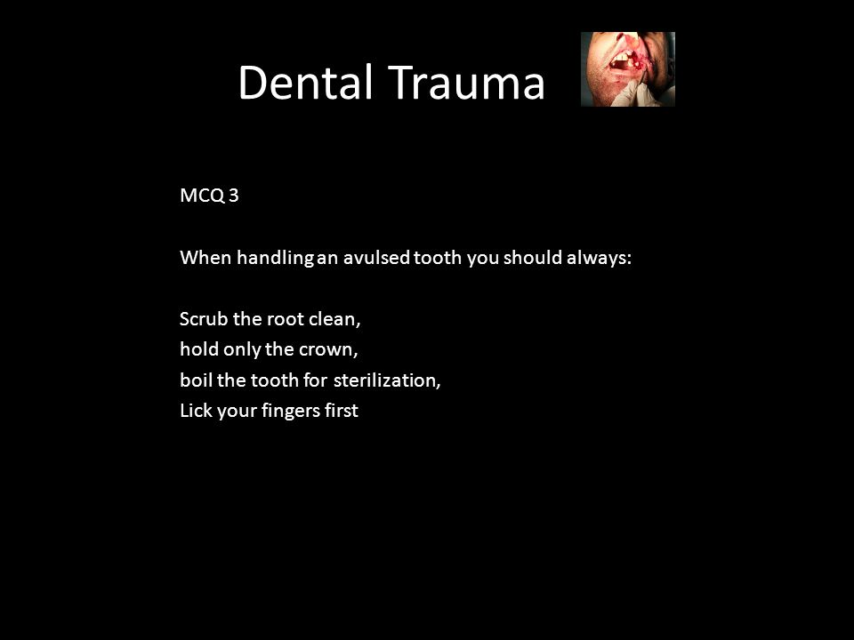 Dental Trauma MCQ 3 When handling an avulsed tooth you should always: Scrub the root clean, hold only the crown, boil the tooth for sterilization, Lick your fingers first