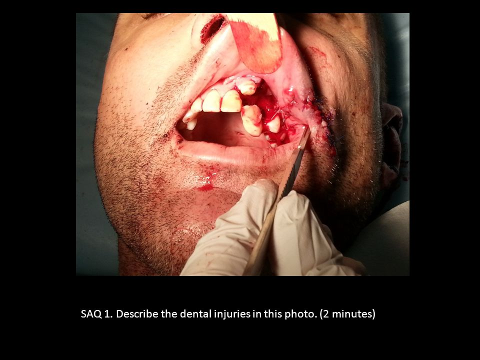 SAQ 1. Describe the dental injuries in this photo. (2 minutes)