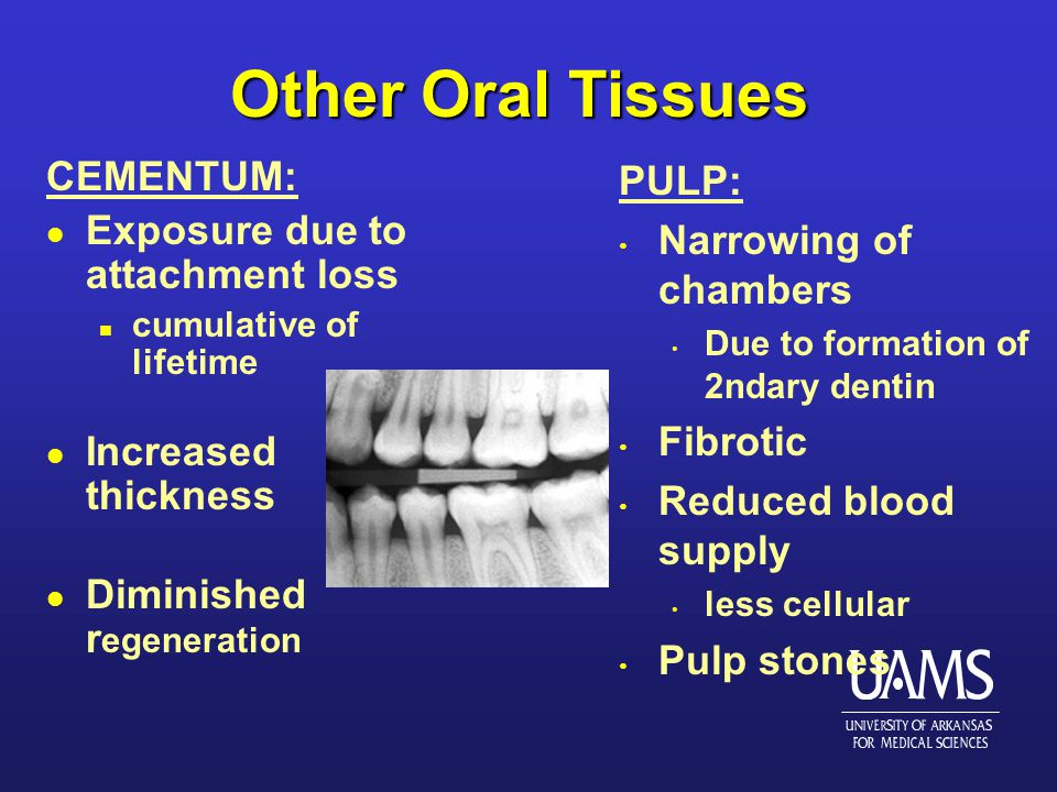 Other Oral Tissues CEMENTUM: l Exposure due to attachment loss n cumulative of lifetime l Increased thickness l Diminished r egeneration PULP: Narrowing of chambers Due to formation of 2ndary dentin Fibrotic Reduced blood supply less cellular Pulp stones