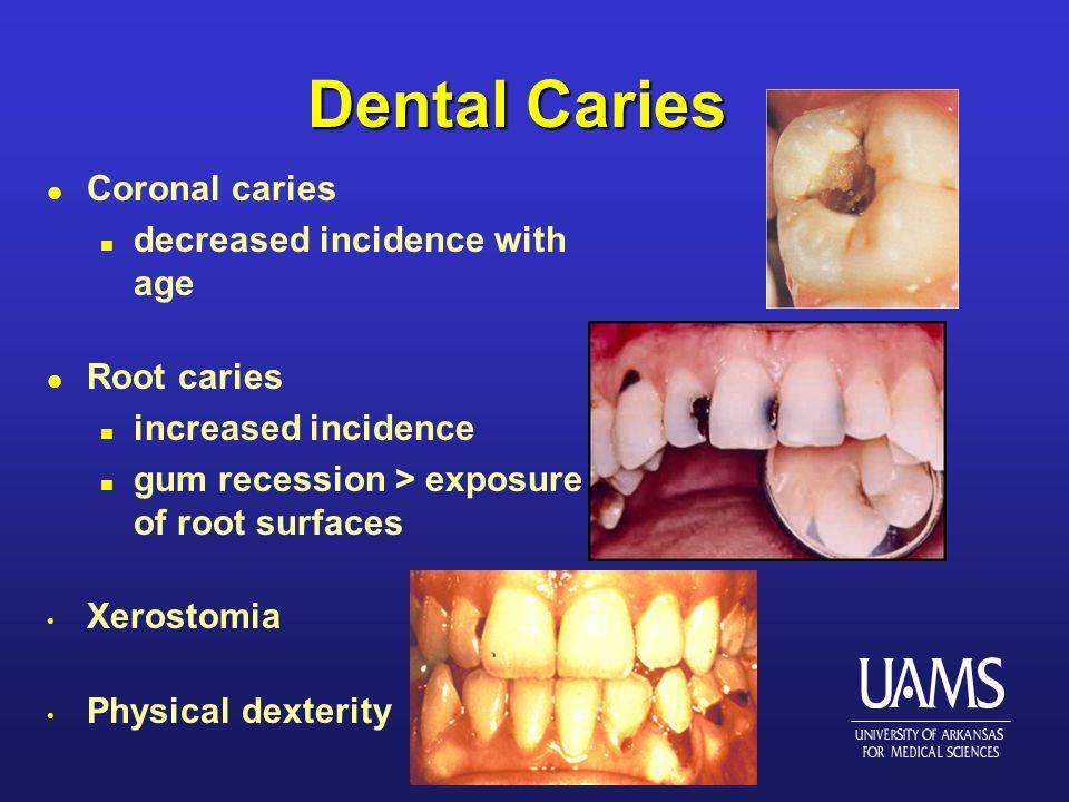 Dental Caries l Coronal caries n decreased incidence with age l Root caries n increased incidence n gum recession > exposure of root surfaces Xerostomia Physical dexterity