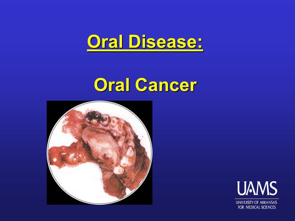 Oral Disease: Oral Cancer