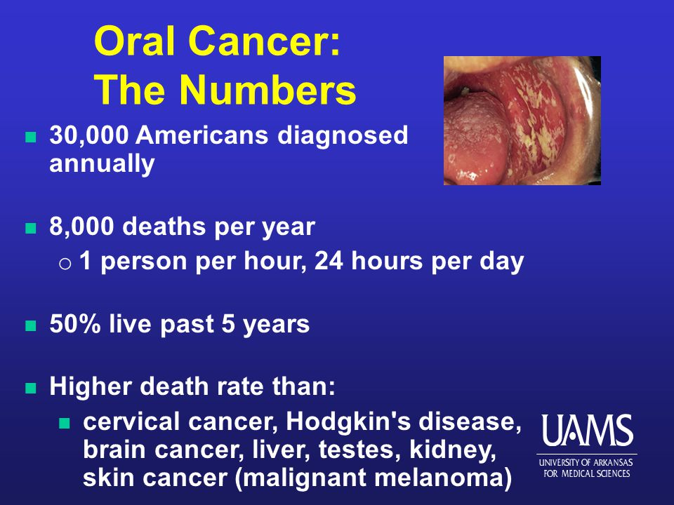 Oral Cancer: The Numbers n 30,000 Americans diagnosed annually n 8,000 deaths per year o 1 person per hour, 24 hours per day n 50% live past 5 years n Higher death rate than: n cervical cancer, Hodgkin s disease, brain cancer, liver, testes, kidney, skin cancer (malignant melanoma)